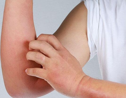 Kiedy mogą pomóc kosmetyki do skóry atopowej